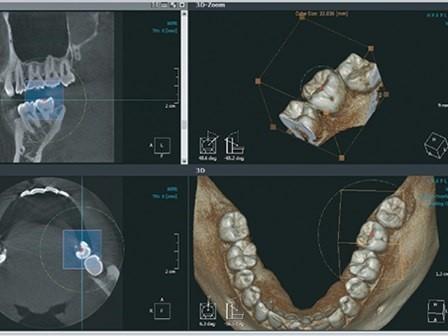 radiologie 3D orthodontie Strasbourg