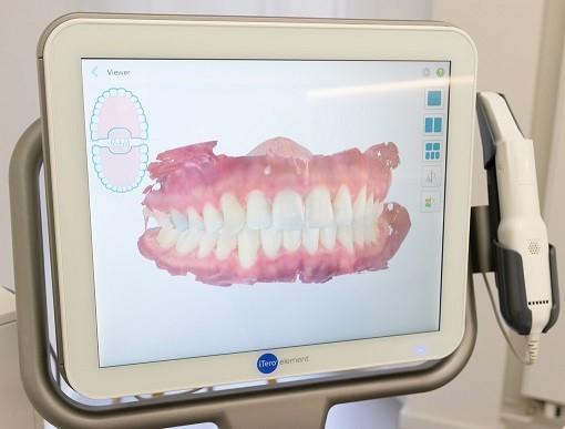 empreinte numérique dentaire Invisalign Strasbourg