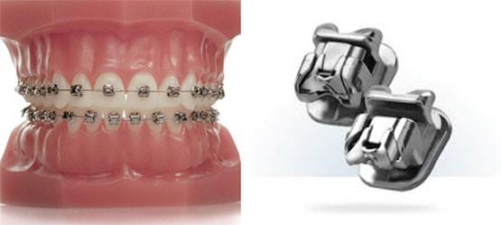 baques orthodontie appareil Strasbourg