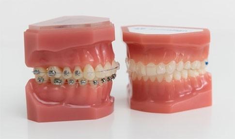 appareil dentaire adolescent Strasbourg