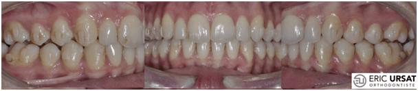 L'orthodontie rapide