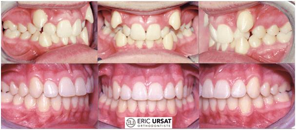 traitement orthodontie adolescent Strasbourg Dr Eric URSAT