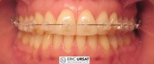 Orthodontie esthétique Strasbourg