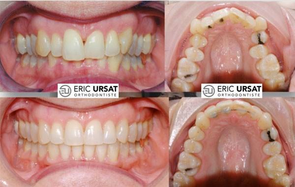 traitement orthodontie adulte Strasbourg Dr Eric URSAT