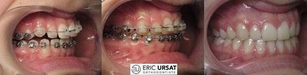 traitement avec bagues orthodontie Dr Eric URSAT Strasbourg