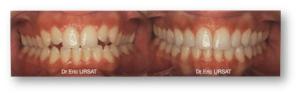 avant après traitement orthodontie Invisalign Dr Eric URSAT