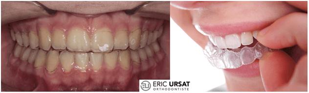 gouttière contention après orthodontie Strasbourg Ursat