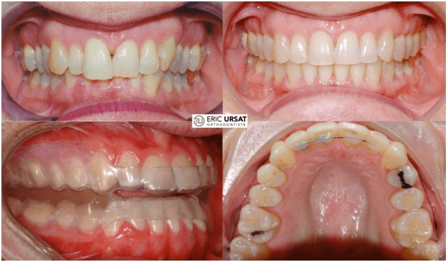appareil contention après traitement orthodontie 67