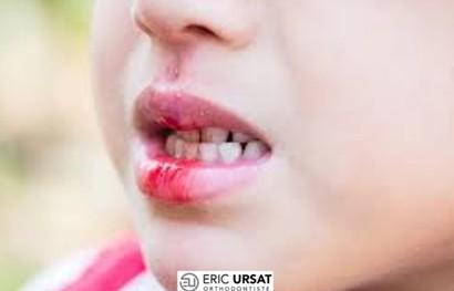 traumatisme dentaire urgence strasbourg