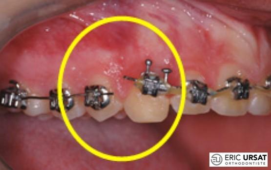 bagues décollées orthodontie strasbourg