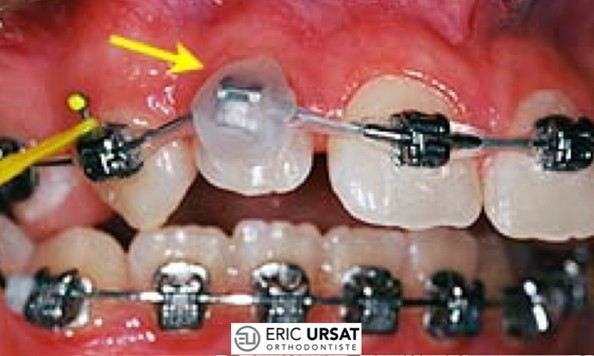 blessure appareil orthodontie cire