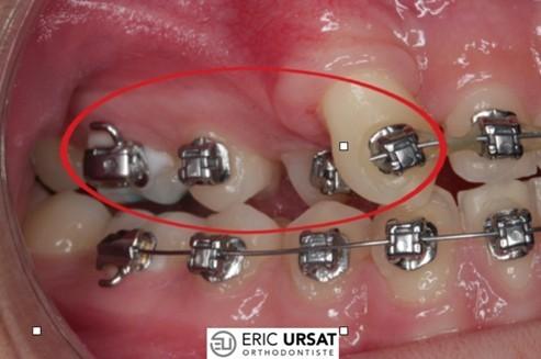 casse appareil orthodontie urgence strasbourg
