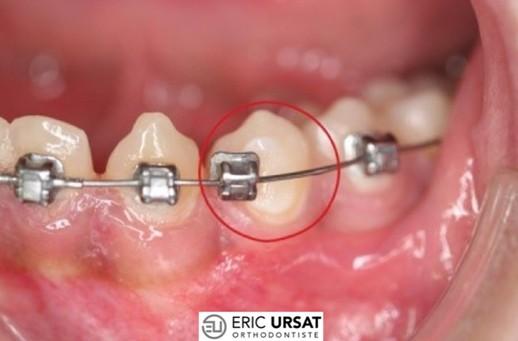 bague décollée orthodontie