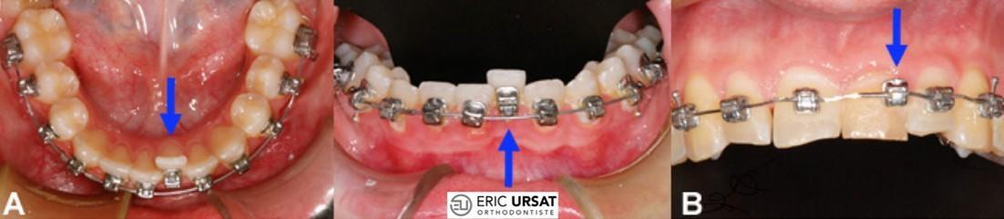 dent qui se déplace urgence orthodontie 67