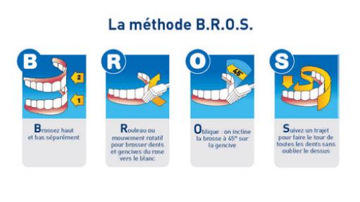 méthode brossage dent Strasbourg dr Eric URSAT