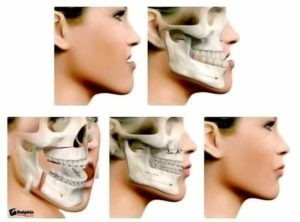 chirurgie mâchoire orthodontie