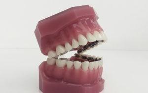 appareil orthodontie invisible Bas-Rhin Dr Ursat