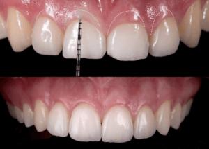 Laser en orthodontie