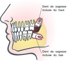 Dents de sagesse et Orthodontie